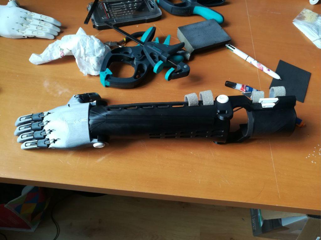 Le nouveau bras de Clotilde imprimé en 3D
